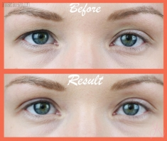 Клей для век Koji Talk Double Eyelid Glue